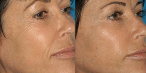 agelesscenter-procell-microneedling3