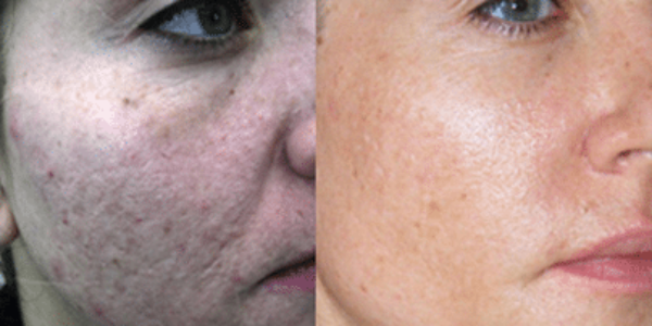 agelesscenter-procell-microneedling5