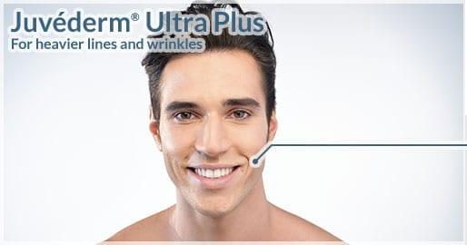 Juvéderm<sup>®</sup> Ultra Plus $395
